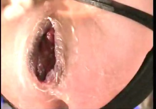 monster asshole extrem open arse hole anal fisting